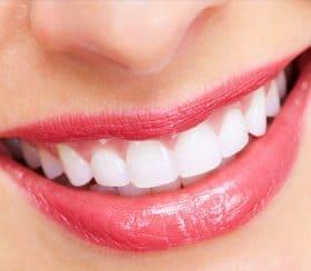 teeth-straightening
