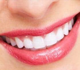 Teeth Straightening Image