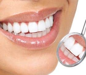 image of woman smiling and a dental mirror upside down showing reflection of her teeth